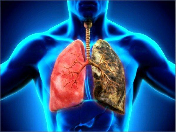 Вследствие долгого курения развивается обстуктивная болезнь легких