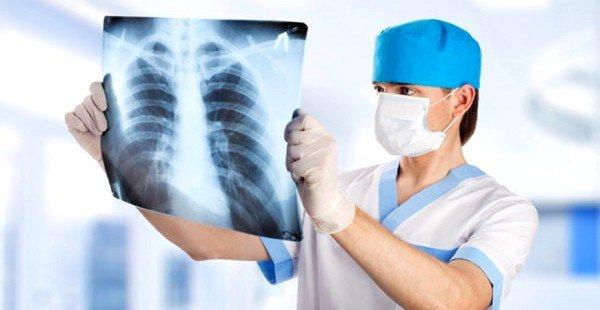 Причиной кашля может быть пневмония