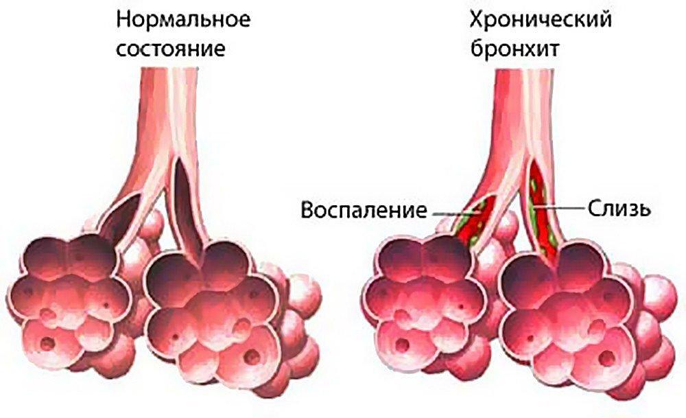 Влажный кашель всегда сопровождается большим количеством выделений, которые концентрируются в дыхательных путях