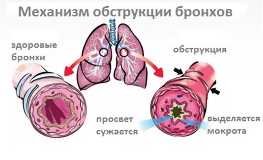 Симптомы бронхиального кашля: хрипы, отдышка, приступы кашля, боли и сдавленность в области грудной клетки, отхождение мокроты при кашле, в том числе гнойной