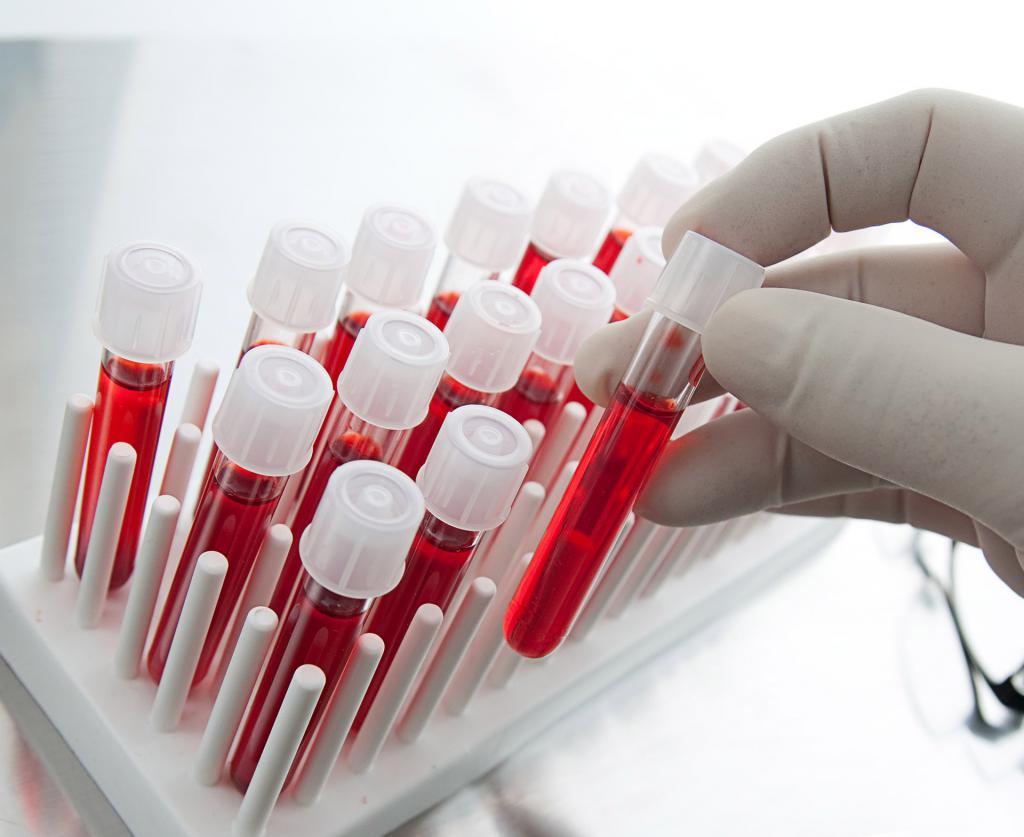 Общий анализ крови, если воспаление острое