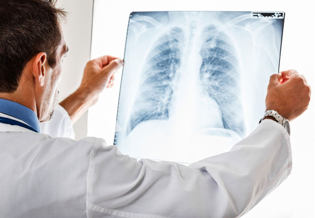 Если кашель после перенесенной простуды и ОРВИ не проходит больше недели, то стоит обратиться к врачу
