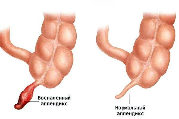 Аппендицит может быть причиной болей в правом боку при кашле