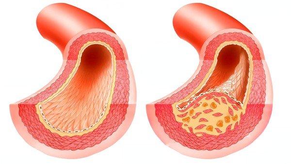 Препарат противопоказан при атеросклерозе