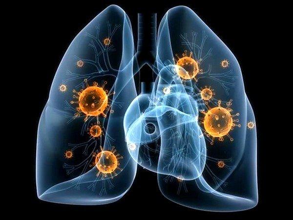 Бактериальная пневмония обусловлена присоединением вторичной бактериальной инфекции