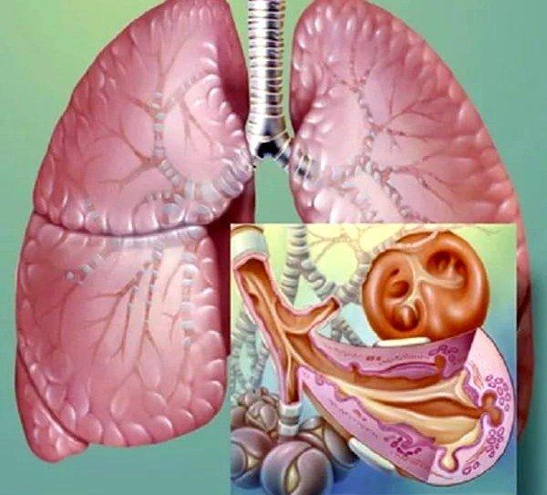 Бронхит может вызывать сухой кашель