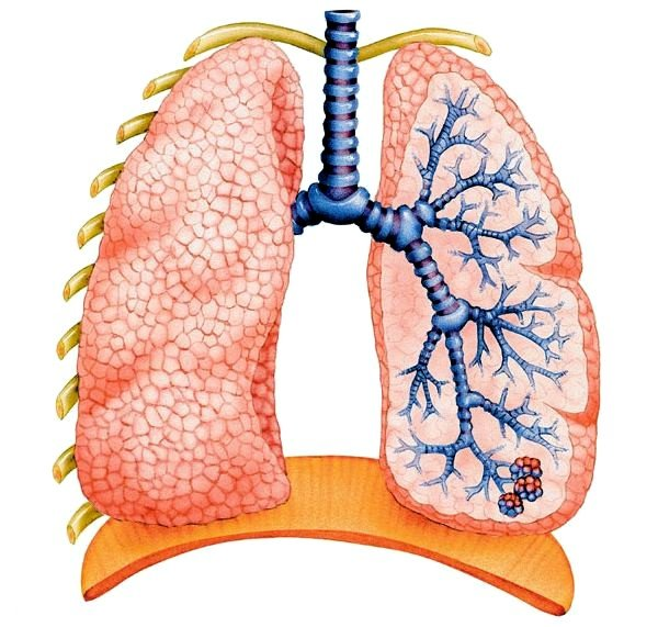 В подавляющем большинстве правосторонняя пневмония отмечается у взрослых людей