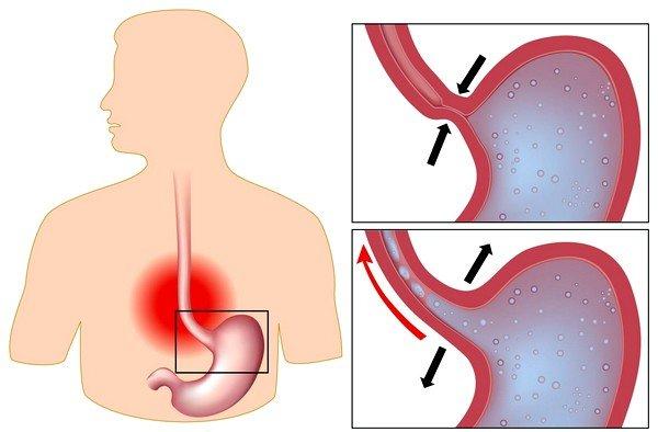 Хронический желудочный рефлюкс может вызывать боли в груди при кашле