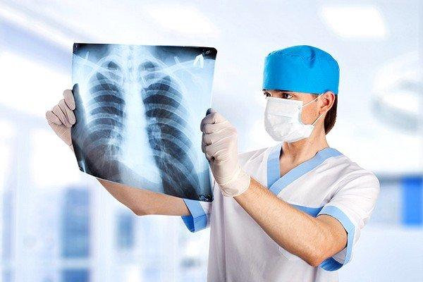 Назначается рентгенография легких