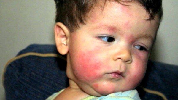 У ребенка красные щеки и кашель: причины и лечение фото