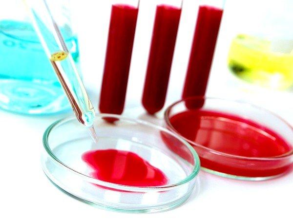 Чтобы правильно диагностировать наличие данного паразита в организме, нужно провести анализ крови