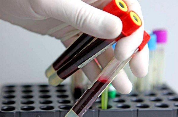 Анализ крови может свидетельствовать об интоксикации организма