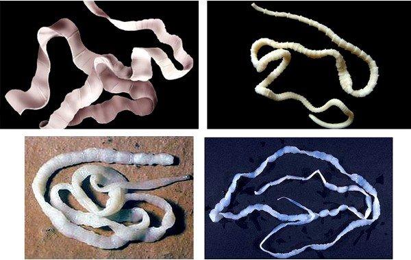 Виды ленточных глистов, методы избавлени фото