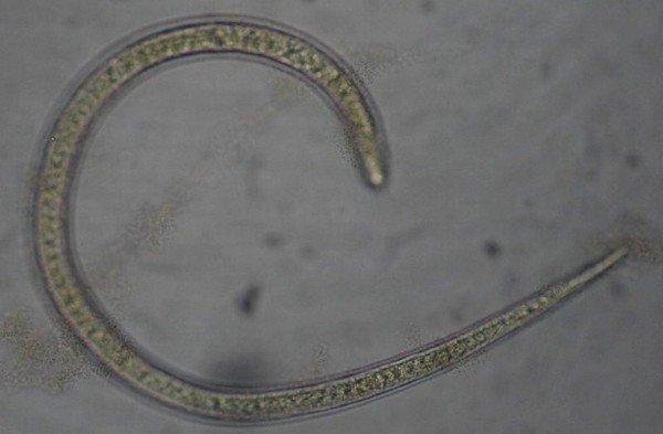 Трихинеллы – это одна из разновидностей первичноротых круглых паразитических червей
