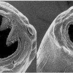 Строение анкилостом схоже с прочими видами нематод — вытянутое тело, сверху которого расположен ротовой аппарат.