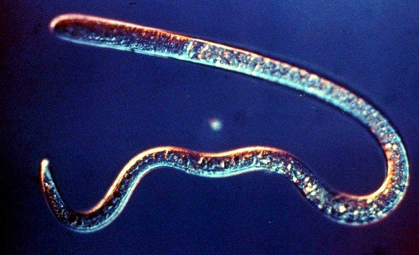 Трихинелла — это круглый червь небольшого размера (0,5 мм), который закручен в спираль