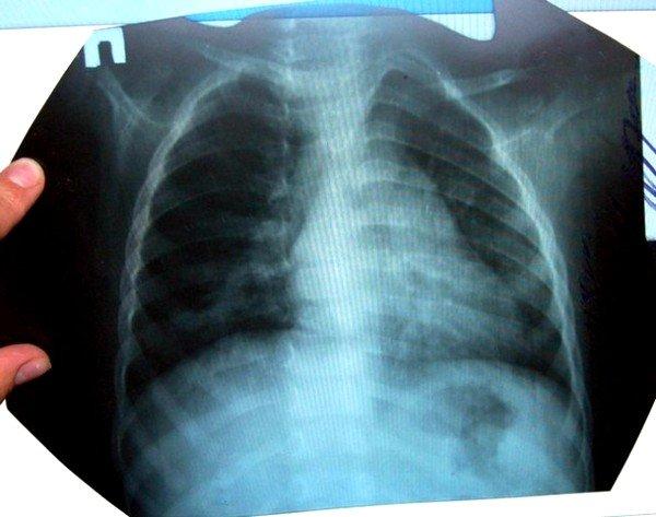 Осложнением трихинеллеза может стать воспаление легких