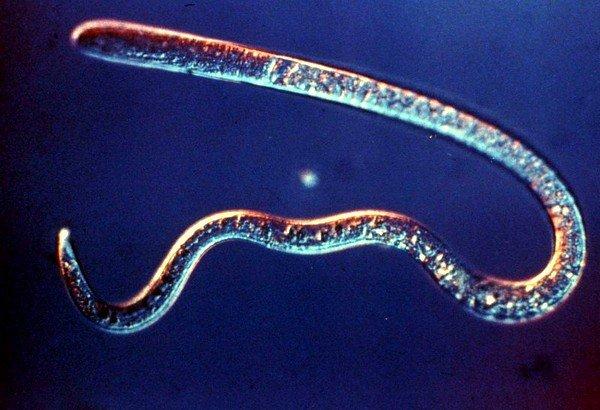 Trichinellosis (от латинского) — острый вид гельминтоза, появление которого провоцируют спиральные трихинеллы