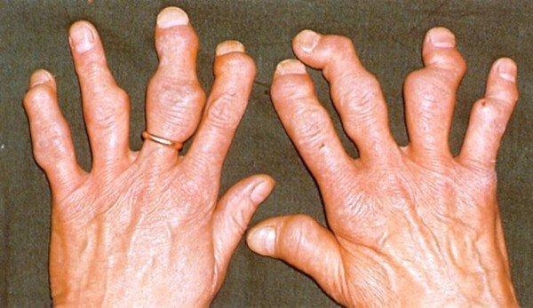 Симптомы и специфика лечения псориатического артрита фото