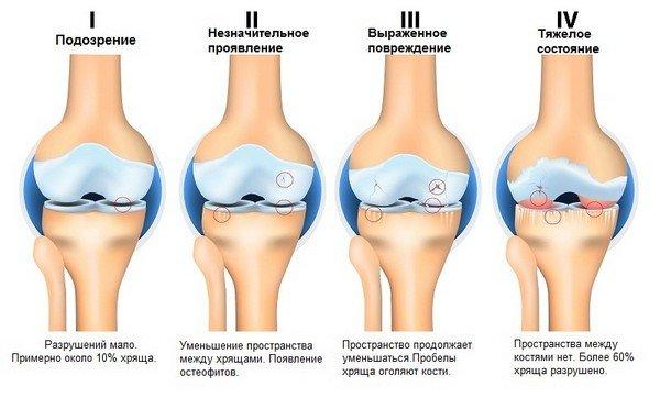 Развитие артроза коленного суства