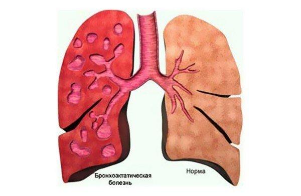Бронхоэктатическая болезнь как причина кашля