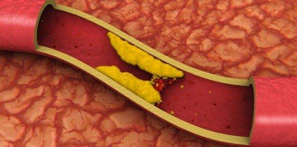 Как снизить холестерин в крови с помощью медикаментов, полезных продуктов и нетрадиционной медицины фото