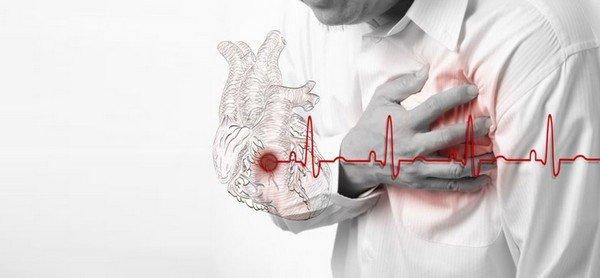 Первые признаки инфаркта миокарда и как помочь человеку фото