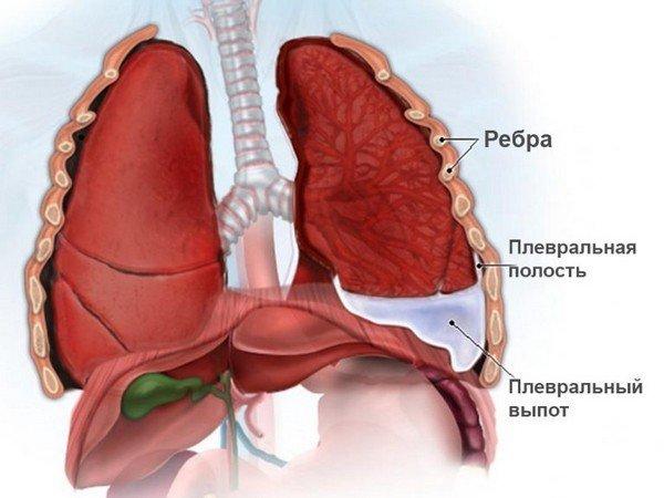 Плеврит как причина кашля