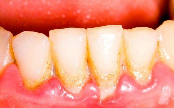 Зубной камень при гингивите