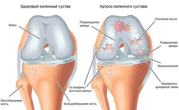 Здоровый коленный сустав и артроз фото