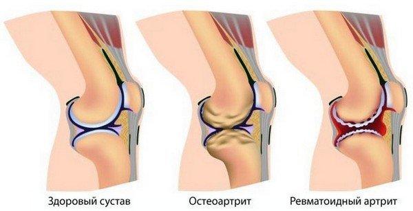 Здоровое колено и артрит