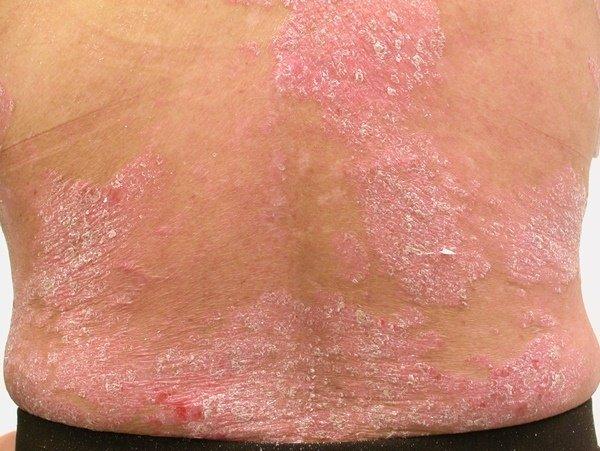 Проявление псориаза на коже человека фото