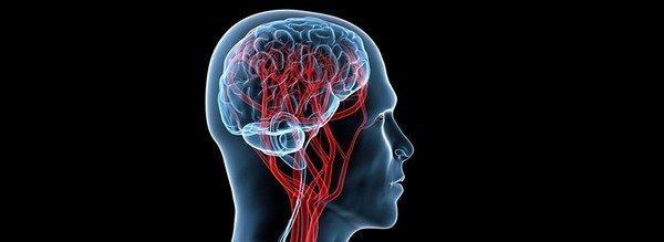 Особенности диагностики сосудов головного мозга