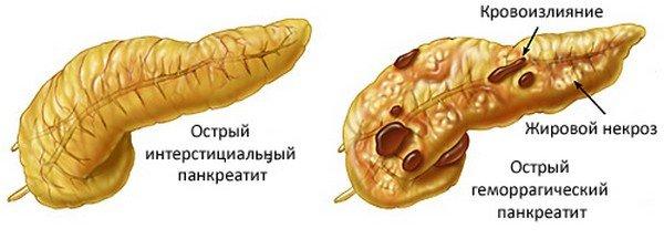 Типы острого панкреатита на схеме