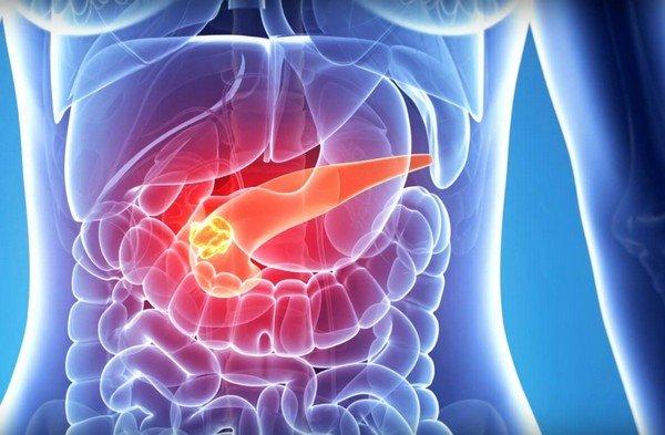 Характерные симптомы, диагностика и лечение препаратами у взрослых при панкреатите фото
