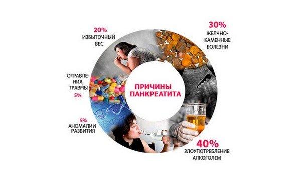 Причины панкреатита, диаграмма