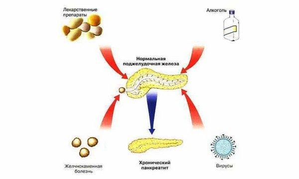 Причины панкреатита схема