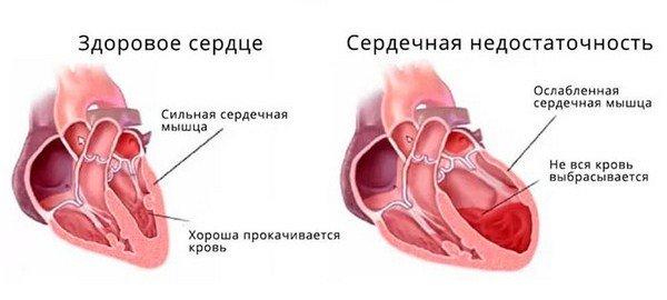 Здоровое сердце и сердечная недостаточность, схема