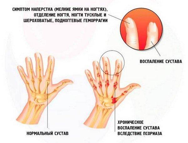 Симптомы псориатического артрита фото