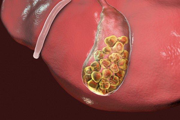Желчнокаменная болезнь и панкреатит