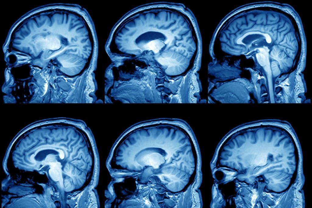 Арахноидальная киста головного мозга размещается на мозговой поверхности, сформировавшись между оболочковыми слоями, и заполняется спинномозговой жидкостью