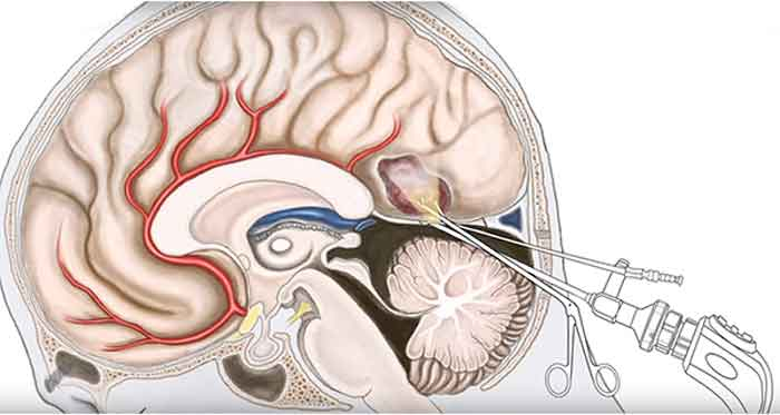 лечение кисты арахноидальной части мозга