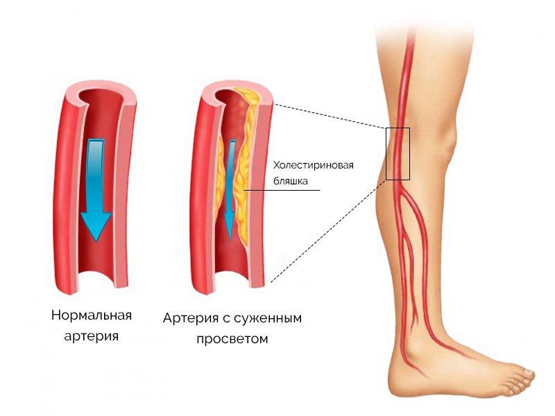 Заболевания сосудов нижних конечностей достаточно распространенное явление современности