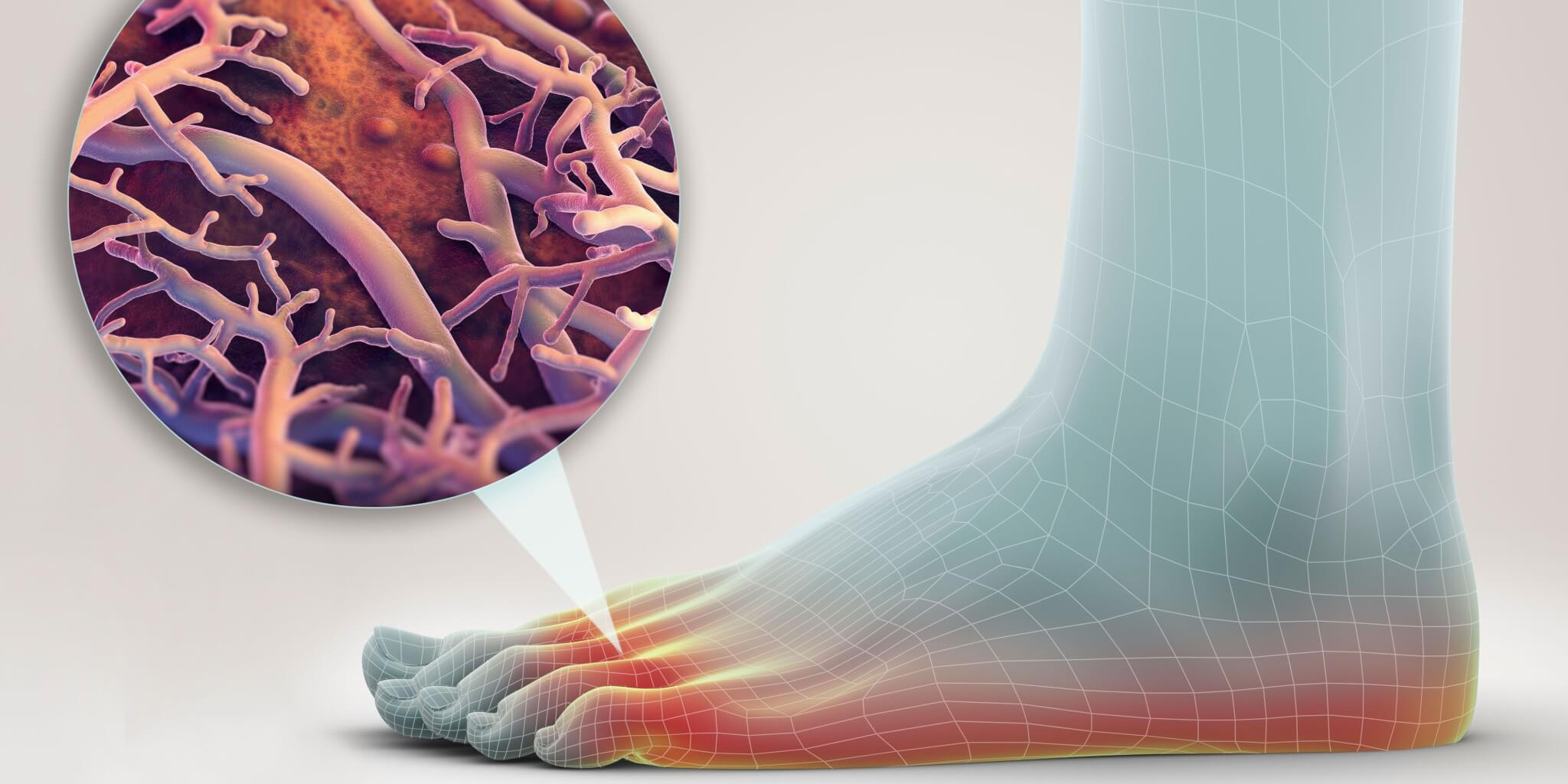 Люминесцентная диагностика грибковых заболеваний фото