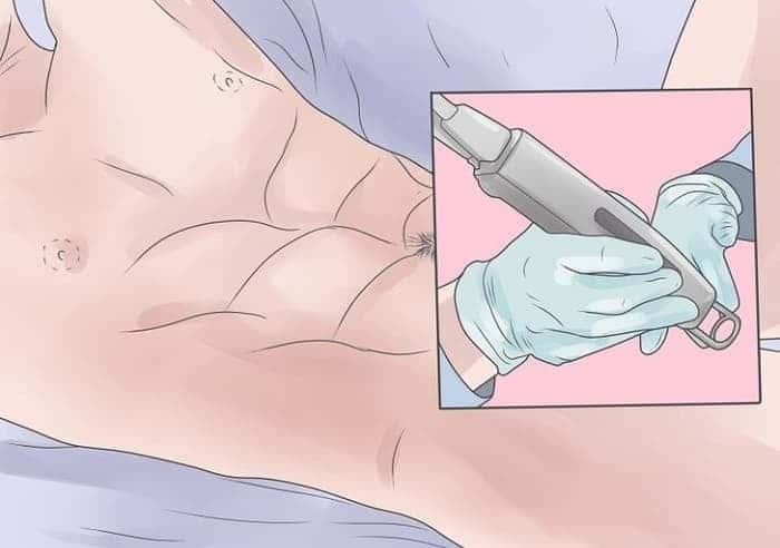 Аногенитальные бородавки серьёзность проблемы фото