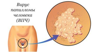 удаление генитальных кондилом