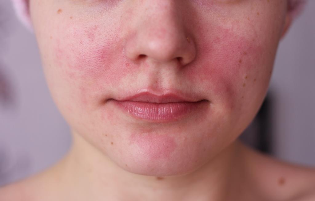 Высыпания на коже лица фото